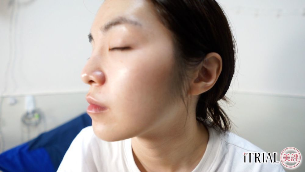 Ärzt Skin 全能嬰兒肌精華 Vitamin B Complex Serum